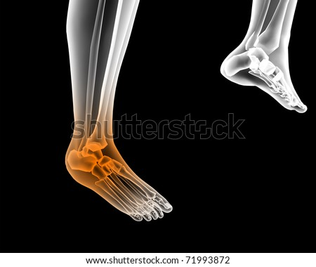 painful foot render illustration - stock photo