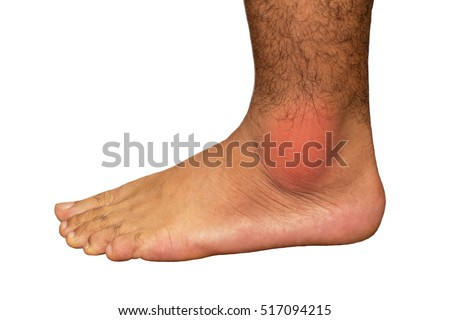 Painful gout inflammation on ankle joint on white background.