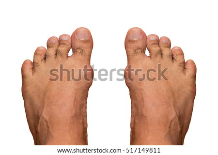 first line treatment for gout how do i know if i have gout in my ankle acute gout attack wiki