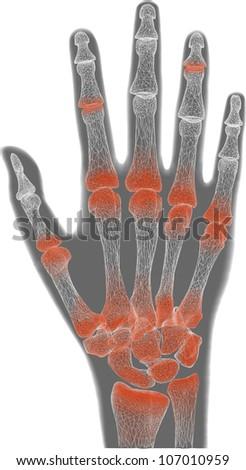 painful gray hand anatomy - stock photo