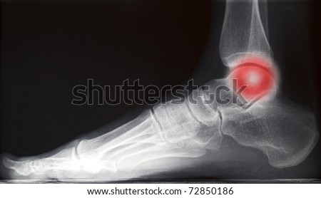 painful human right foot ankle xray picture (internal side) - stock photo