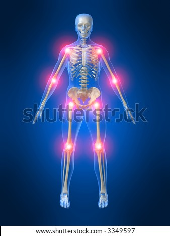 painful joints - stock photo