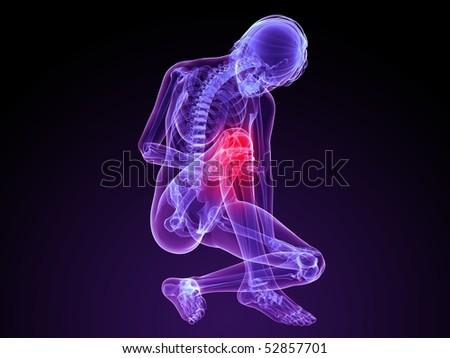 painful knee illustration - stock photo