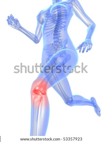 painful knee illustration - stock photo