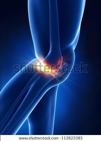 Painful meniscus concept - stock photo