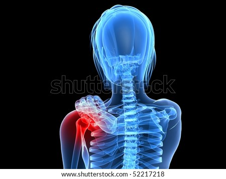 painful shoulder - stock photo