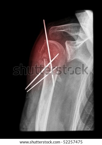 painful shoulder surgery on x-ray isolated on black background with red illumination. - stock photo