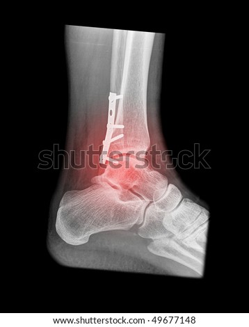 painfull foot fracture with red illumination on black background - stock photo