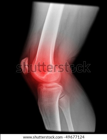 painfull knee joint catched on x-ray isolated on black background - stock photo