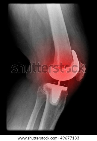 painfull knee joint replacement isolated on black background - stock photo