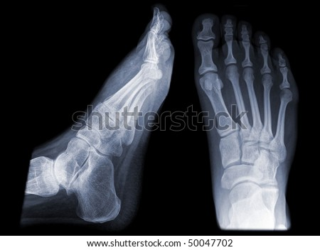 pair of feet from different views - stock photo