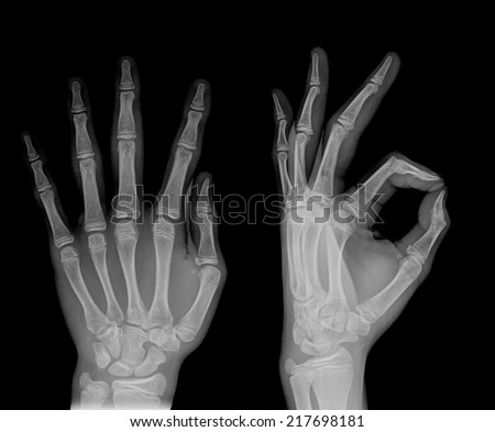 pair of hand on black background, x-ray ,sign OK - stock photo