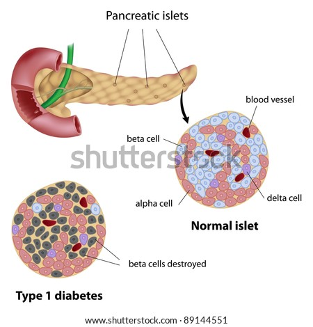 Pancreatic islet normal and that of type 1 diabetes