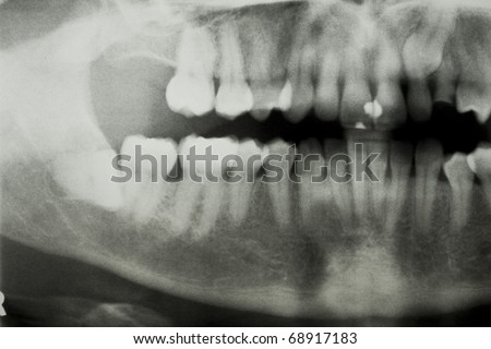 Panoral dental X Ray showing impacted wisdom tooth - stock photo