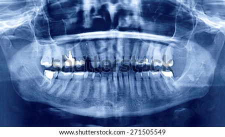 Panoramic dental X-Ray, extracted tooth, cavity, pin, sealed teeth         - stock photo