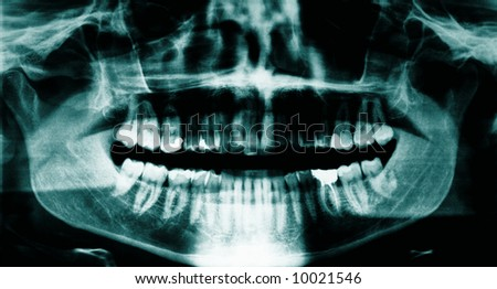 Panoramic dental x-ray of a young adult male - stock photo