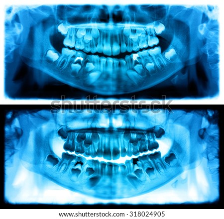 Panoramic dental x-ray of child of seven (7) years. Blue image roentgen teeth upper and lower girl skull. Two versions positive and negative shots of the digital image. - stock photo