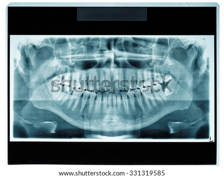 Panoramic dental X-ray slide, patient data removed - stock photo