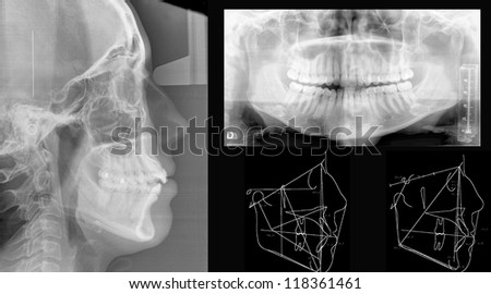 Panoramic dental X-Ray study - stock photo