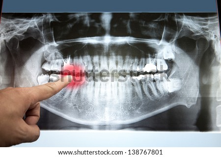 Panoramic dental X-Ray with hands point in Computer screen
