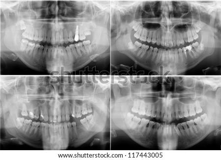 Panoramic dental X-Rays - stock photo