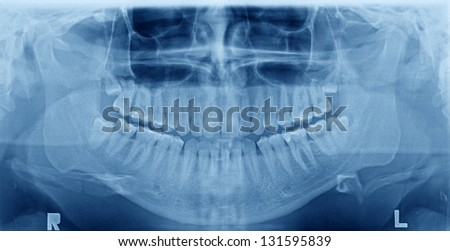 Panoramic x-ray image of teeth. Problem with wisdom tooth. - stock photo