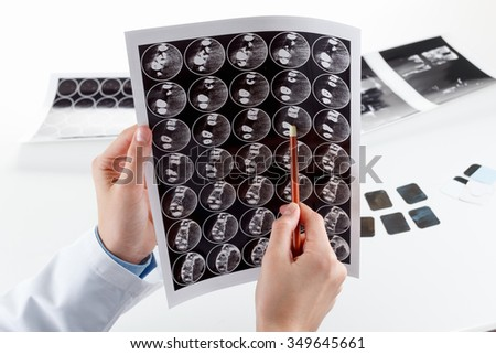 Panoramic x-ray jaw. A dentist holding an x-ray the patient's tooth and indicates the problem - stock photo