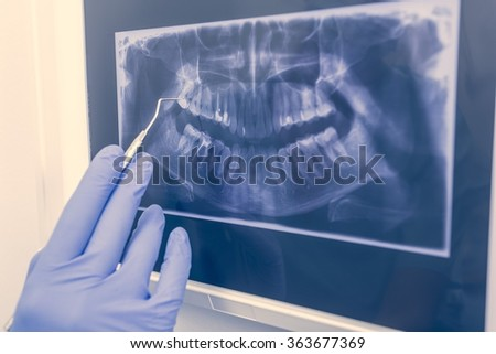 Panoramic xray image of a full denture in office. - stock photo