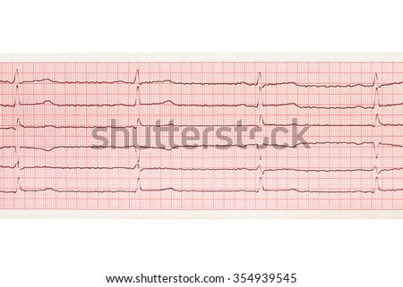 Paper ECG results isolated on white background. Clipping path included.