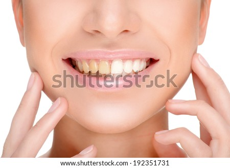part of the face close-up, toothy smile,concept before and after bleaching