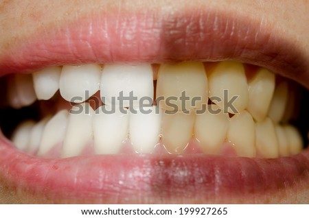 part of the face close-up, toothy smile,concept before and after bleaching - stock photo