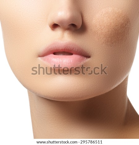 Part of the woman's face with damaged skin. Make-up & cosmetics - stock photo