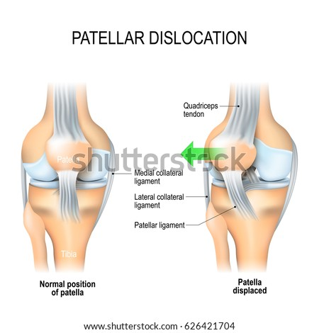 Patellar Dislocation Normal Position Kneecap Patella Stock