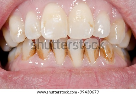 patient before prophylactic treatment, dirty brown teeth - stock photo