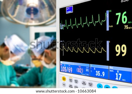 patient cardiogram monitoring in operation room - stock photo