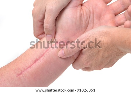 patient getting a therapy massage on scar - stock photo