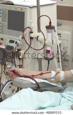 patient helped during dialysis session in hospital - stock photo