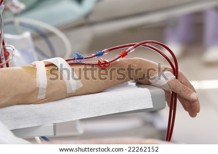 patient lying down during dialysis session in hospital - stock photo