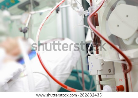 Patient on cardiopulmonary bypass device in the intensive care unit - stock photo