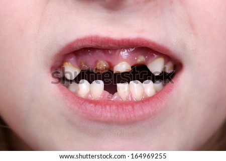 Patient open mouth showing caries teeth decay. Dental healthcare. - stock photo