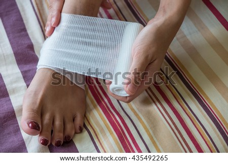 Patient put bandage on injured foot. First Aid - stock photo