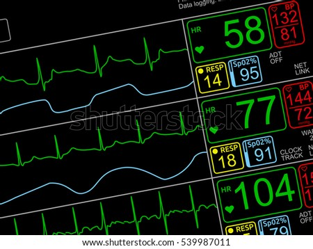 Icu Stock Images, Royaltyfree Images & Vectors  Shutterstock. Online Human Resources Classes. Where To Buy Ssl Certificate. Cloud Based Content Filtering. Columbus Ohio Divorce Attorney. Windows Virtual Desktop Hosting. Car Dealerships In St Louis Mo. Children Asthma Symptoms Need To Sell My Home. Philadelphia Bail Bonds Mortgage Loan Options