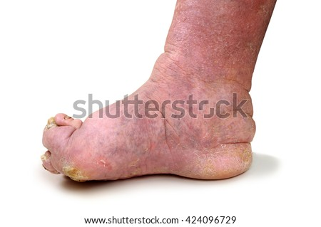 Patients feet of an old man.Inflammatory process.