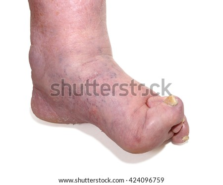 Patients feet of an old man.Inflammatory process. Gout.Erysipelas.Nail fungus. The disease of the joints and tissues caused by metabolic disorders in the body.
