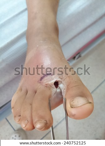 patients with foot ulcers - stock photo