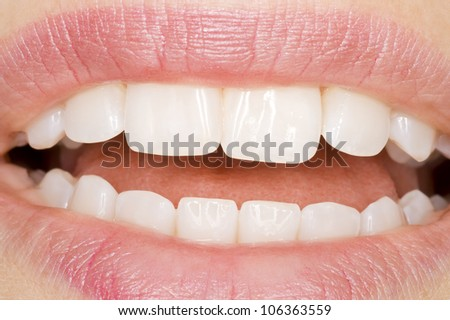 perfect teeth with perfect oral hygiene - stock photo