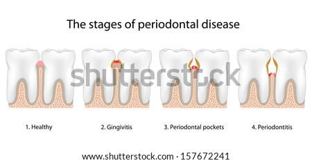 Periodontal Disease - stock photo