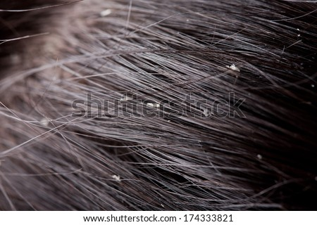 Persistent dandruff issue - flaky scalp  - stock photo