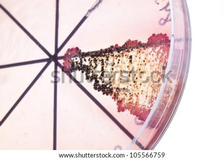 Petri dish close up. Bacteria culture. - stock photo