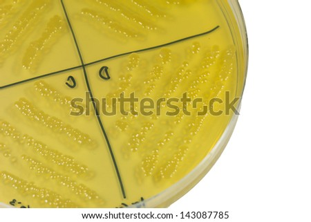 Petri dish with bacterial  colonies.   - stock photo